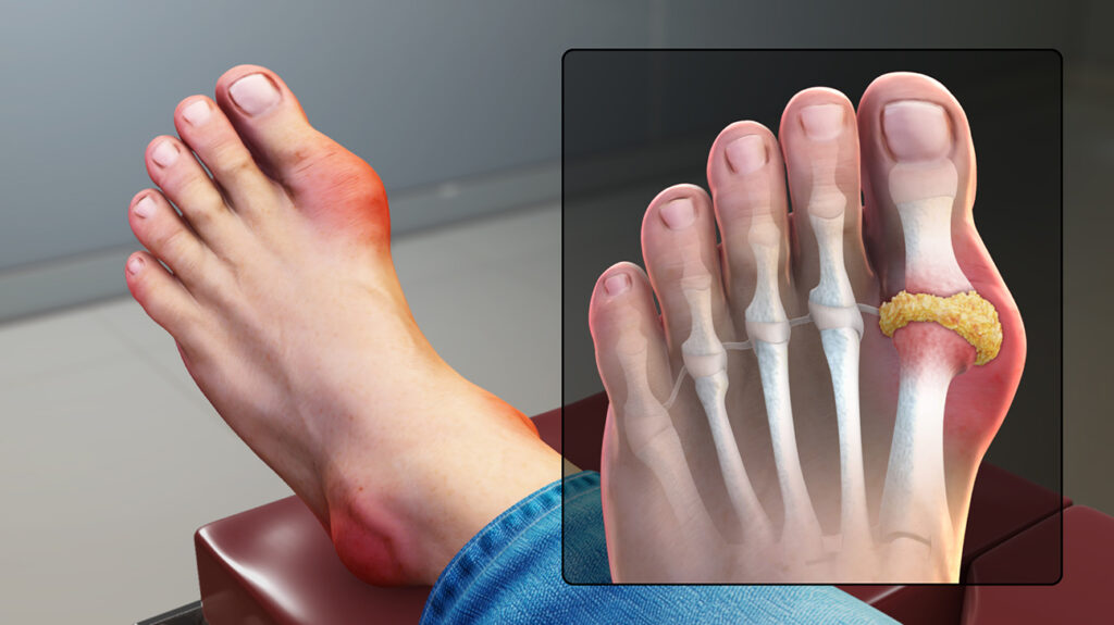 Gout Treatment in Pune