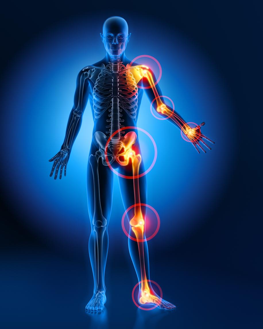 Rheumatoid Arthritis Specialist Doctor in Pune